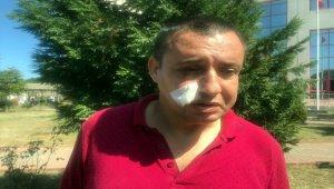 Zonguldak'ta gazinin darbedildiği iddiası